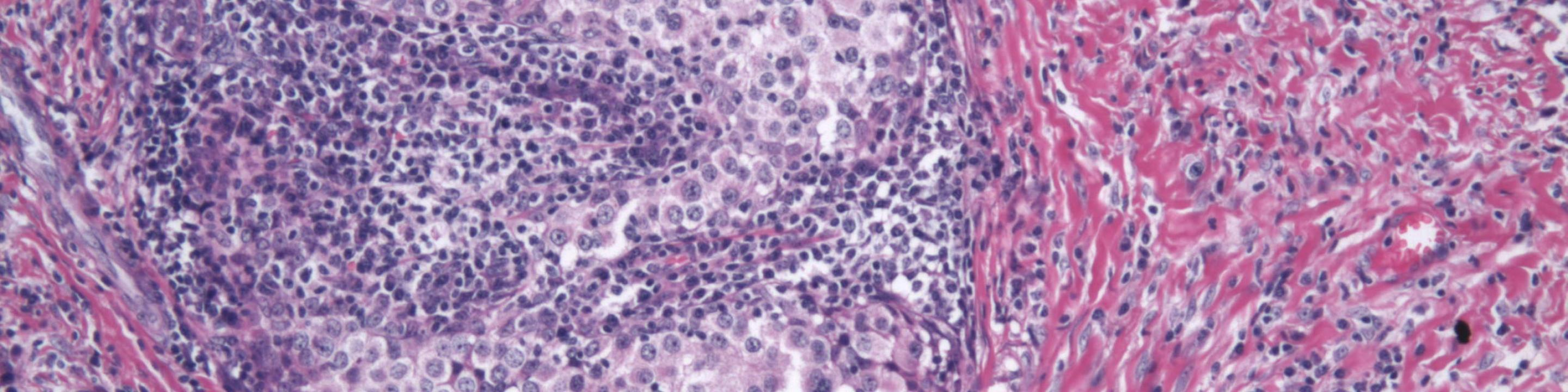 artwork cancer tissue staining